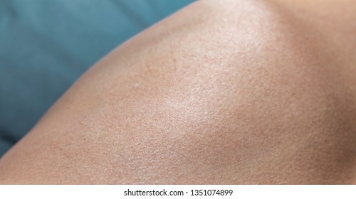 Close up shot on a texture of a white caucasian human skin with goose bumps on a blue background.