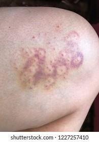 Close up skin disease on a man leg.