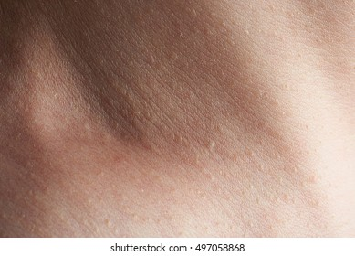 close up of skin on man neck with freckles