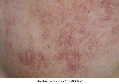 Close up skin with vascular stars and couperose