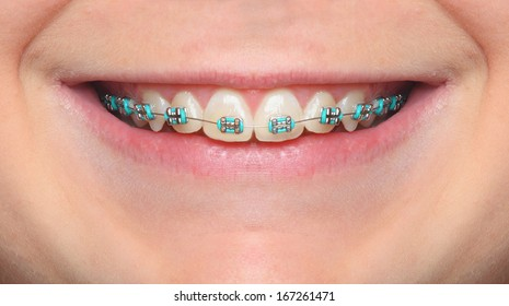Close up smile of an teenage girl wearing orthodontic braces.