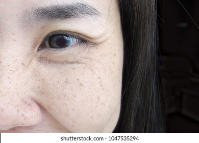Close Up Smiling Half Face of Young Asian Woman Eye with Crow's