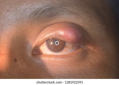 close up of the STYE during eye examination.