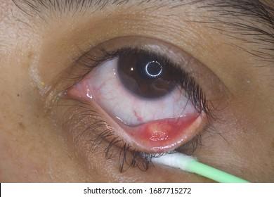 close up of the STYE, HORDEOLUM, CHALAZION, Eyelid infection during eye examination.