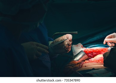 Close up of surgeon hands with sterile white gloves perform a suture following a special wound surgery to close an abdominal intervention. surgeon team uses tweezers, forcep and surgical needle