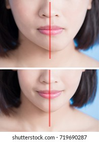 close up of surgery woman asymmetry chin before and after on the blue background