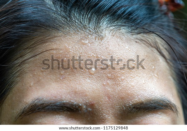 Close up sweat on forehead. Forehed of adult woman with sweat.
