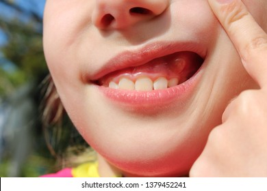 Close up  swelling on gums the child.