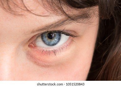 Close up of swollen eye of girl looking into the camera