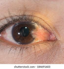 Close up of thepterygium during eye examination.
