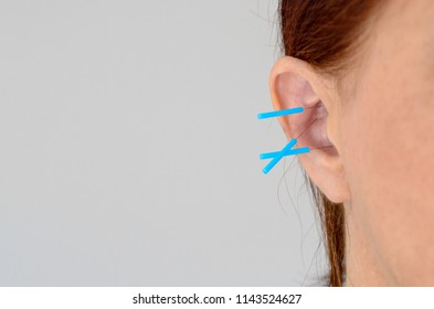 Close up of theraputic blue plastic acupuncture needles in unknown womans ear lobe over white background