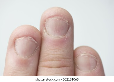 close up of three fingers with badly bitten nails and skin. Hand of a male.