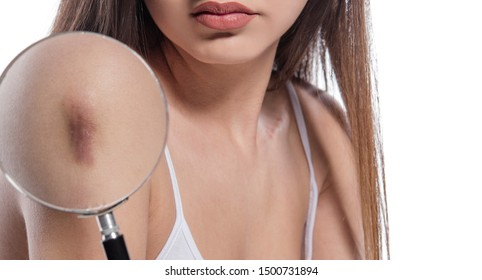 Close up thru magnifying glass of female body with a scar. isolated on white background