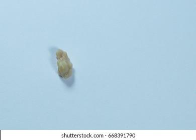 Close up Tonsil Stones isolated on white background