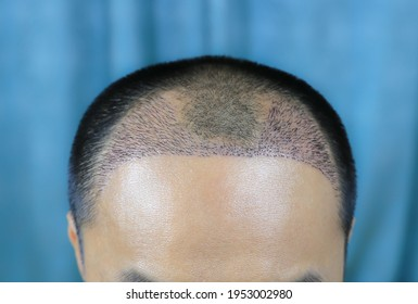 Close up top view of a man's head with hair transplant surgery with a receding hair line. -  After Bald head of hair loss treatment. - Shutterstock ID 1953002980