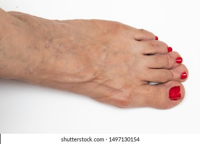 A close up and top view on the naked foot of an elderly lady, with red toenails, showing arthritis of the joints, old age associated illnesses, isolated against a white background.