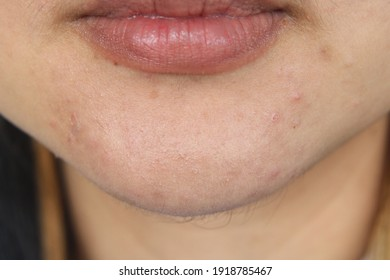 close up, acne, background, texture