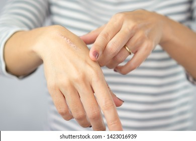 Close up: First degree heat burn scar on a woman's hand. The wound damage on epidermis outermost layer of skin. Healing, Removal, Treatment, Accident in the kitchen, Scar, Scald, Wound Healing, Repair