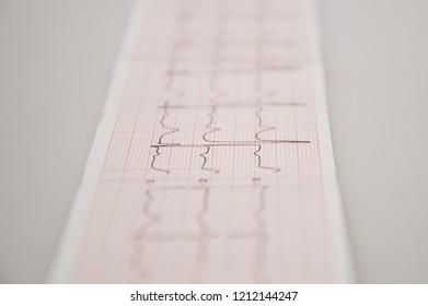 Close up. Medical research. ECG Tape with mild arrhythmia.