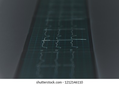 Close up. Medical research. ECG Tape with mild arrhythmia. Green tone.