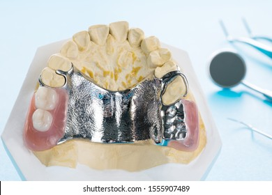 Close up, Removable partial denture (RPD.) on blue background.