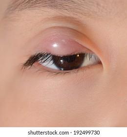 Close up of upper eyelid abscess during eye examination.