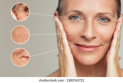 Close ups of wrinkles and skin imperfection on the face of a senior woman. Portrait of beautiful senior woman touching her perfect skin after a beauty treatment. Aging process concept.