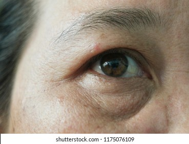 Close up,Skin face problem of asian woman 40s,she as melasma freckles due to pigment melanin malfunction due to hormones,has under eye dark circles,Glabellar lines,Eye wrinkles.Selective focus.
