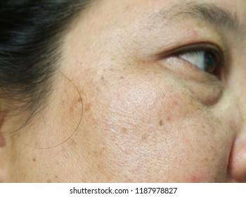 Close up,Skin face problem of asian woman 40s,she has smiled,she as melasma freckles due to pigment melanin malfunction due to hormones,has Nasolabial folds,Marionette lines.Selective focus.