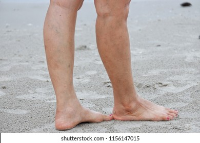 Close up of varicose veins, scars, freckles, skin on a woman's legs on a beach sand, the concept of health and beauty.