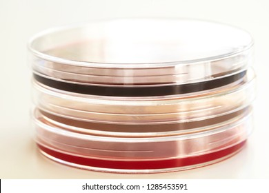 Close up of Various Agar Plates on White, Muller Hinton Agar, Blood Agar, Eosin Methylene Blue Agar Dishes