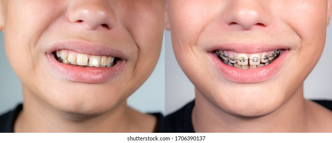 Close up view collage photography of smiling mouth of young white kid with overbite teeth before and after fixing metal modern braces construction on teeth. Shoot the same day.