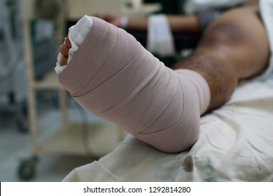 Close up view of a diabetic foot with bandage after surgery.