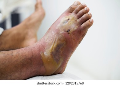 Close up view of a diabetic foot with inflammation and infection.