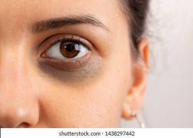 A close up view on a the eye of a beautiful young lady with bruising beneath the eye. Domestic violence concept with copy space on the right.