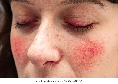 A close up view on the face of a young caucasian lady, suffering from a severe case of rosacea, with facial redness and dilated blood vessels of the eyelids, nose and cheeks.