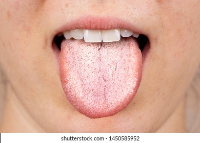A close up view on the white furry tongue of a young Caucasian girl. A common symptom of a candida albicans yeast infection.