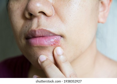 Close up a virus herpes on lips women