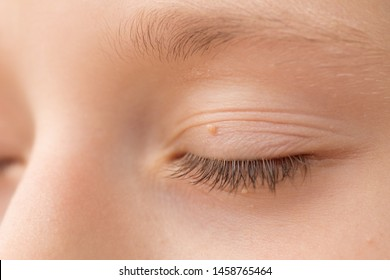 Hpv warts face treatment Papillomavirus with warts, Hpv and face warts