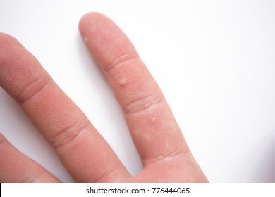 Close up wart on the hand finger isolated on white background