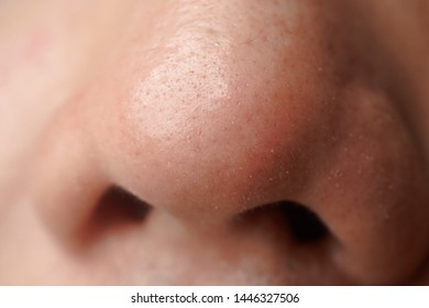 A close up of white head on nose of asian men