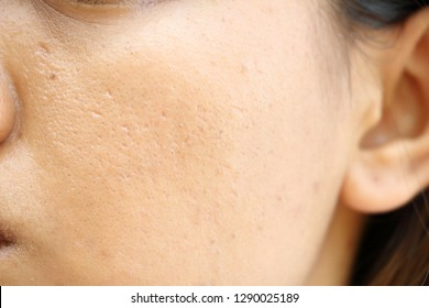 close up wide pores on oily face skin of asia woman