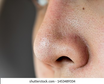 Close up wide pores skin on dry face of Asian woman, Female nose and cheek skin problem, large pores, whitehead and blackhead pimple