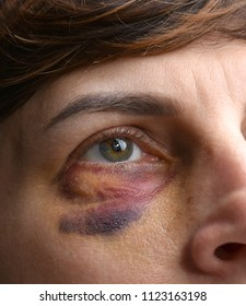 Close up of woman with bruise on her face. Domestic violence. Hematomas after injections into the eye