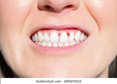 Close up of woman mouth with bleeding gums