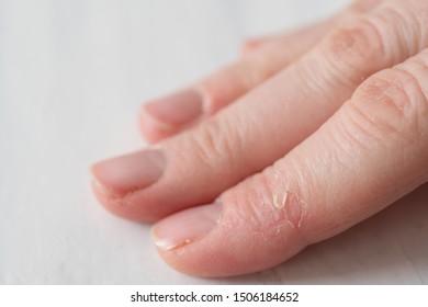 Close Up of a Woman's Hand with Dry Broken Skin on Fingers