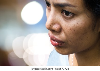 Close up of women freckle, dark spot on face, dried skin issues, need treatment. Asian middle age women
