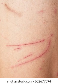 close up of wound on human skin