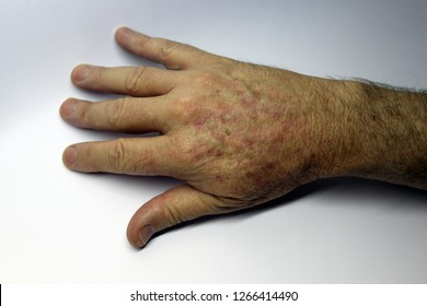 Close up of wrinkled hand with sunspots caused by sun radiation - Image
