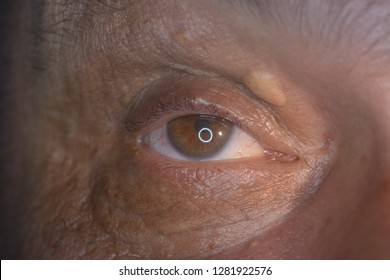 close up of the xanthelasma during eye examination.